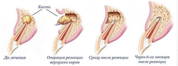 Лечение кисты зуба: фото