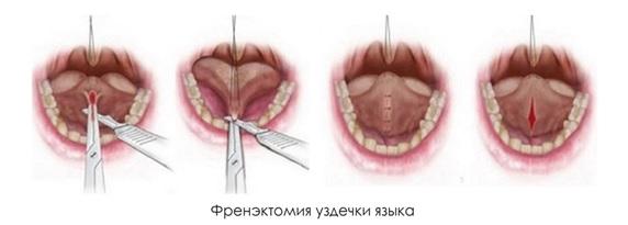 Пластика уздечки языка: фото