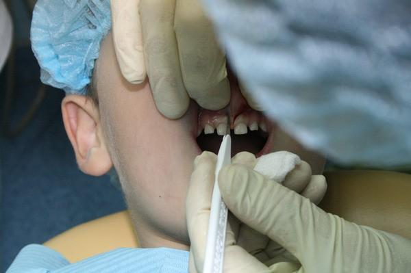 пластику уздечки верхней губы